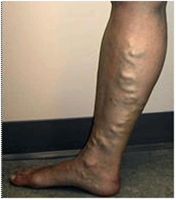 Nổi gân bắp chân, dấu hiệu suy tĩnh mạch chi